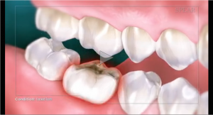 Cracked Tooth video