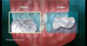 Filling vs crown