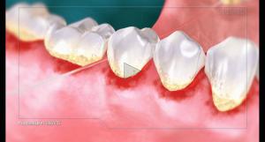 Video explaining gingivitis