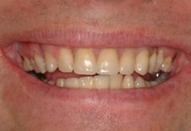 multiple teeth loss - smile - after