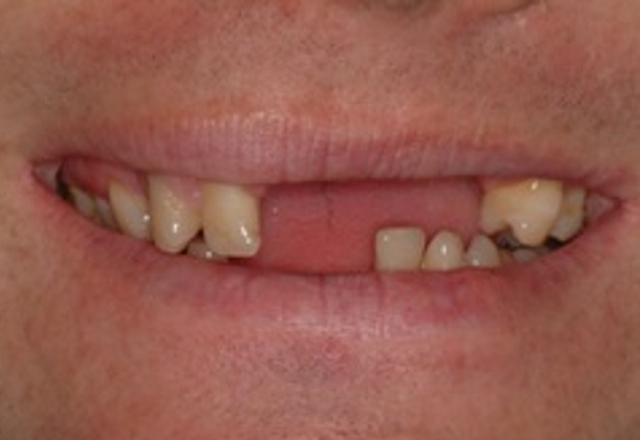 multiple teeth loss - smile - before