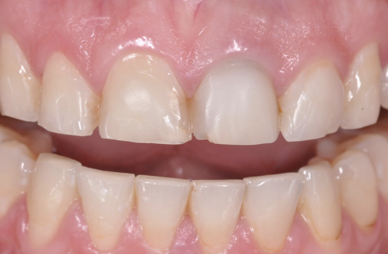 How Long Do Veneers Last – City Dental
