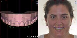 Smileframe 1